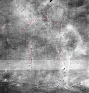 el-coloso-detalle-central-de-la-radiografia